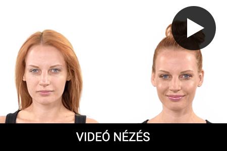 HOW TO: Napcsókolta bőr